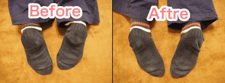 骨盤矯正・骨格矯正による脚長差の改善
