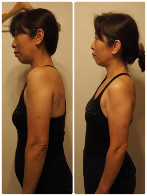 骨盤矯正・骨格矯正のビフォーアフター・板橋区50代女性の写真